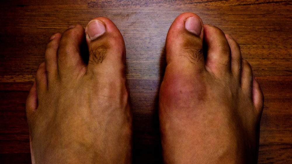 This man has gout in his feet which is extremely painful
