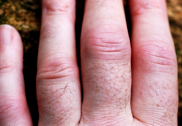 This person suffers from the most common form of painful arthritis in their fingers.