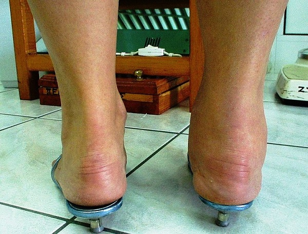 Arthritis can affect every joint in the body and it hurts - like this person's ankles