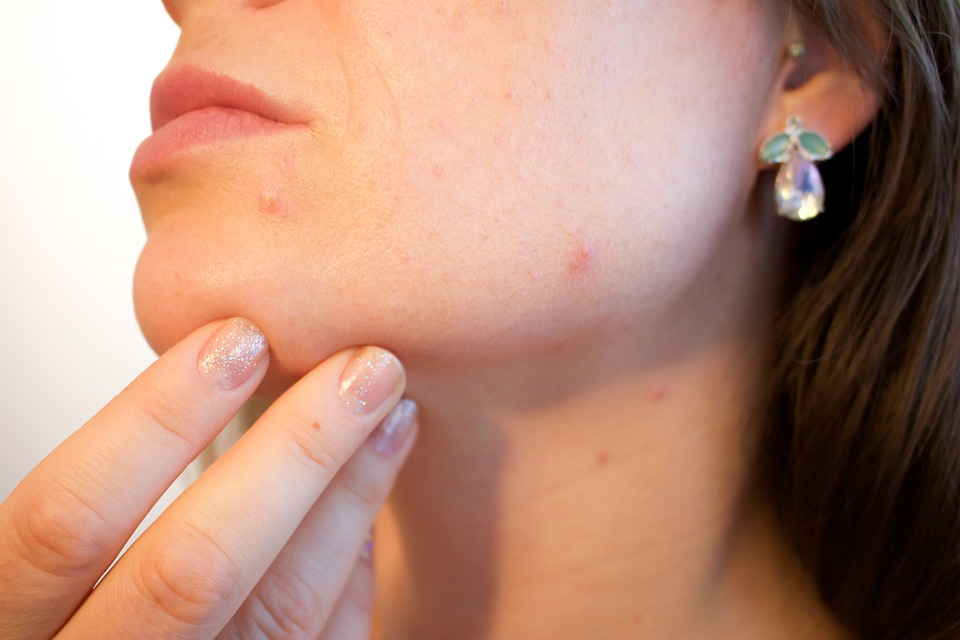 A woman's skin with acne showing. Acne can also be treated using cannabinoids.