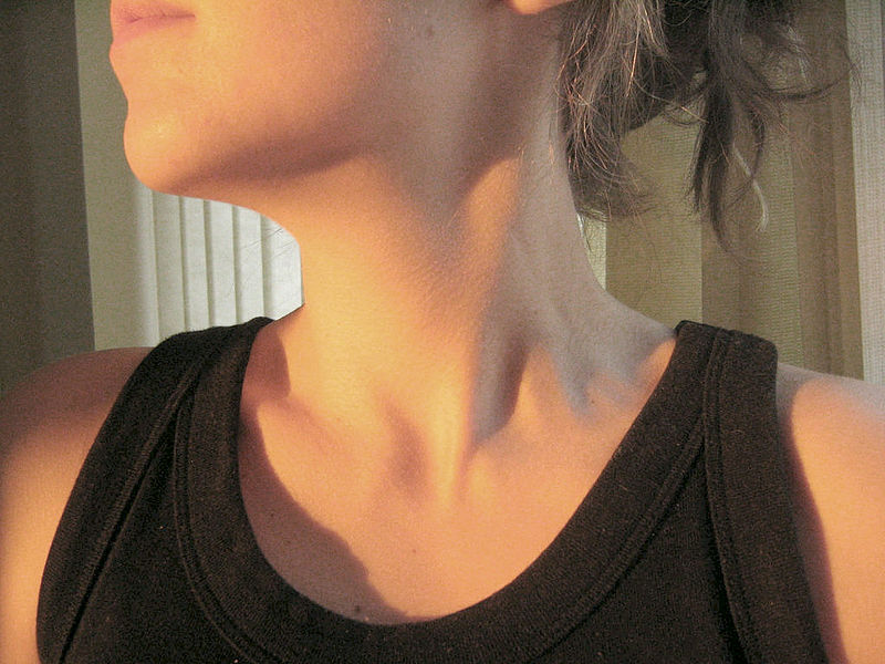 A woman's neck. Fibromyalgia sufferers often report pain in this part of their body.